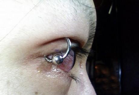 Eyelid Piercing Eyelid Piercing...